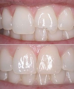 Tooth bonding, before and after.