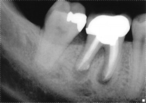 X-ray showing a tooth repaired with root canal therapy