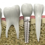Cross-section of a single-tooth implant
