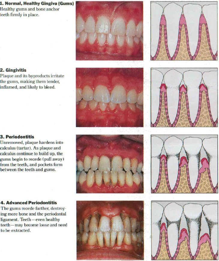 Stages of Periodontal Disease.